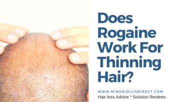 How Long Does Minoxidil Take To Work - Minoxidil 15 Direct